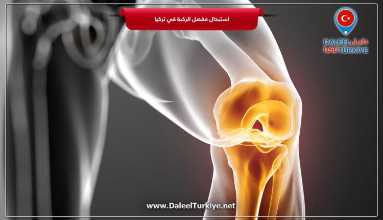 استبدال مفصل الركبة في تركيا